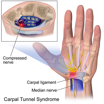 Carpal-Tunnel-Syndrome.png
