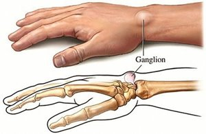 Ganglion surgery - Patient Information Brochures - Mater Group