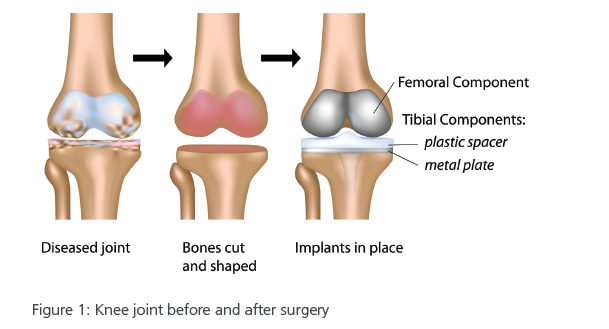 total-knee-replacement.PNG