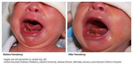 before and after frenotomy