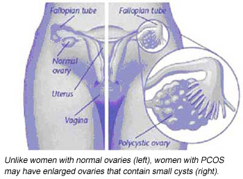 Polycystic ovary syndrome - Patient Information Brochures